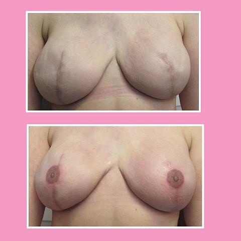 boobs 3